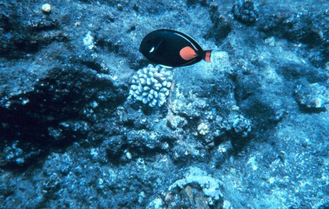 Achilles tang Picture