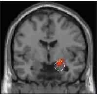 Brain image of amygdala Picture