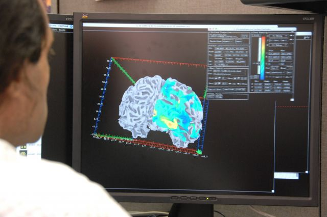 Brain image analysis at the Statistical Computing Core, NIMH IRP using AFNI, a software system developed at NIMH Picture