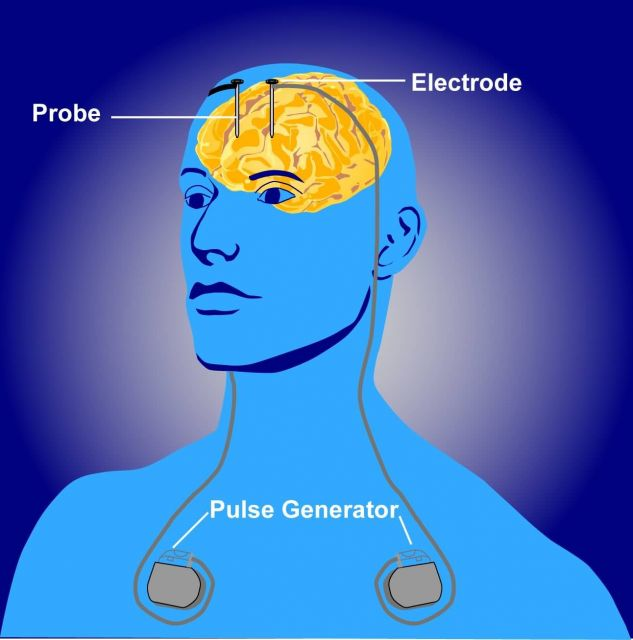 Illustration of deep brain stimulation, or DBS Picture