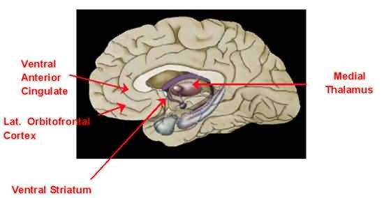 Schematic of dorsal view of brain Picture