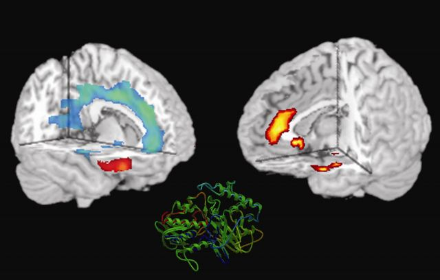 Protein of MAO gene in brains with aggression-fMRI scans Picture