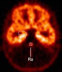 PET scan shows distribution of serotonin 5-HT1A receptors (front of brain is at top), which were reduced by about a third in the raphe (Ra) in panic d Picture