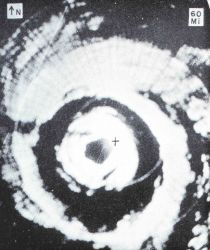 Aircraft APS-45 radar image of Hurricane Donna Photo