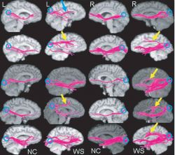 Small  images of the left and right half of the human brain Photo