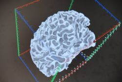 Brain image from the Statistical Computing Core, NIMH IRP using AFNI, a software system developed at NIMH Photo