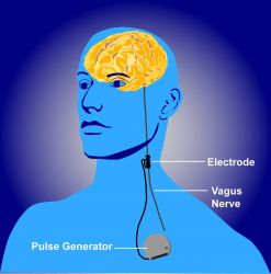 Illustration of vagus nerve stimulation, or VNS Photo