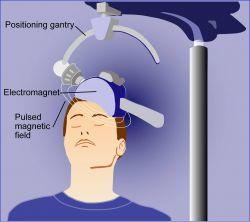 Illustration of transcranial magnetic stimulation, or TMS Photo