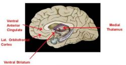 Schematic of dorsal view of brain Photo
