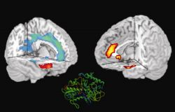 Protein of MAO gene in brains with aggression-fMRI scans Photo