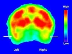 PET scan of monkey brain cross-section, showing greater activity in left dorsal temporal pole than in same area of right hemisphere (arrows) while ani Photo