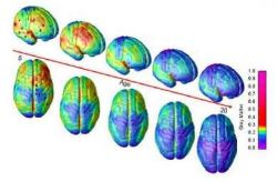 MRI scans of healthy children and teens shows 15 years of brain development ages 5–20 and the