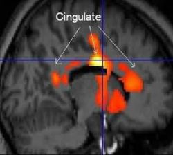 Statistically-analyzed PET scan data superimposed on structural MRI scan front of brain is at right shows areas in the anterior and posterior cingulat Photo