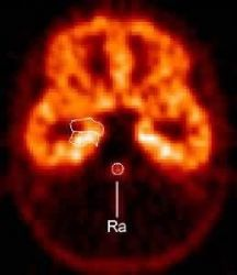 PET scan shows distribution of serotonin 5-HT1A receptors (front of brain is at top), which were reduced by about a third in the raphe (Ra) in panic d Photo