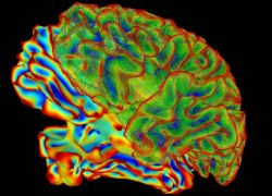 Mulit-color image of whole brain for brain imaging research Photo